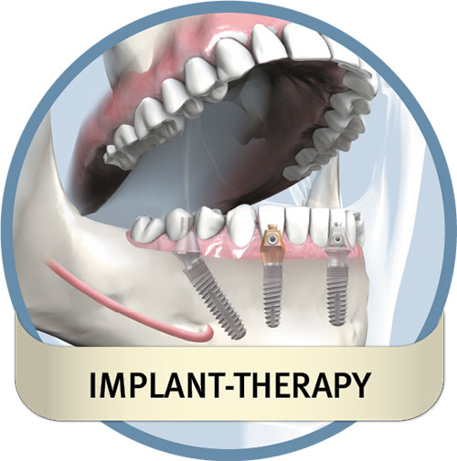 Implant-therapy