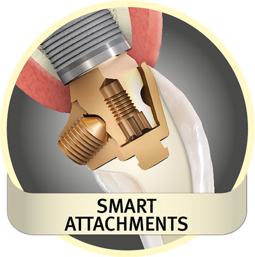 Smart attachments