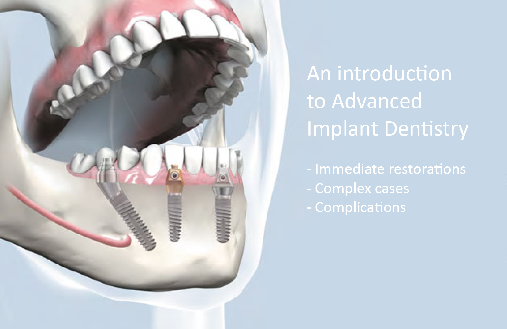 SDS Dental Implants Clinical Trial - Gary R. O'Brien, D.D.S.